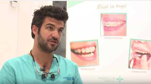 Implantes dentales de calidad